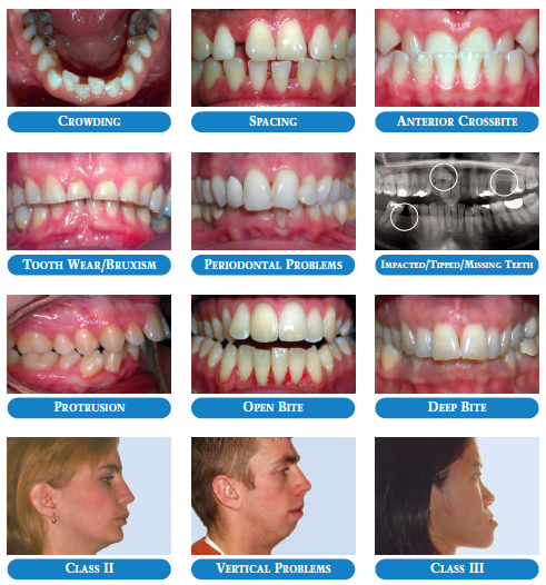 Common Problems - Adult Orthodontics